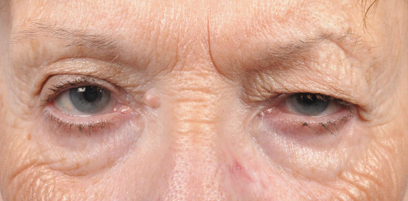 Dry Skin on Eyelid, Red, Burning around Eyes, Irritated ...