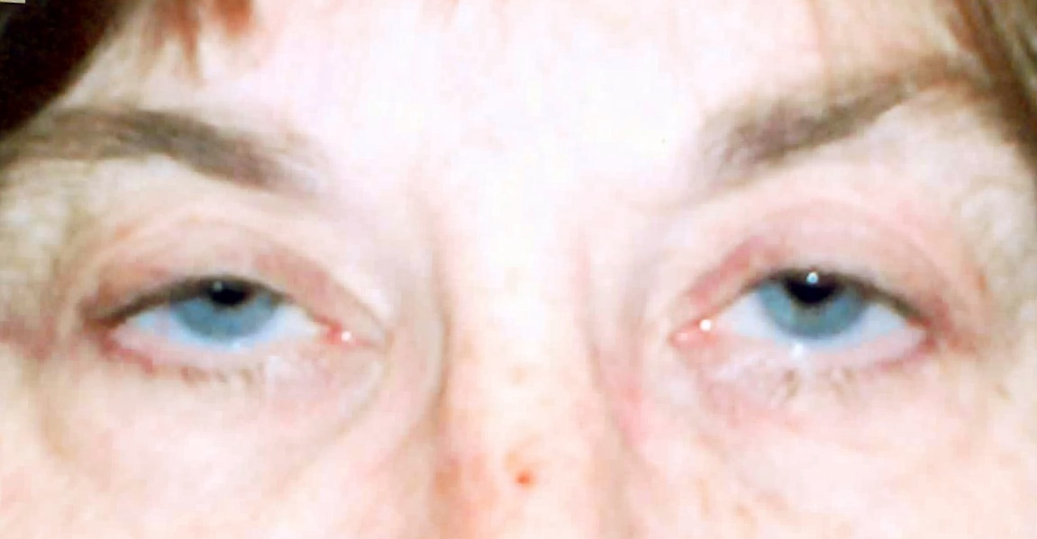 Eyelid Conditions : EYE PHYSICIANS S.C.